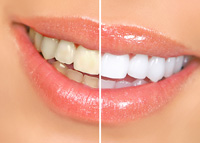 Teeth Whitening - Main Line Center for Dental Excellence - Narberth PA